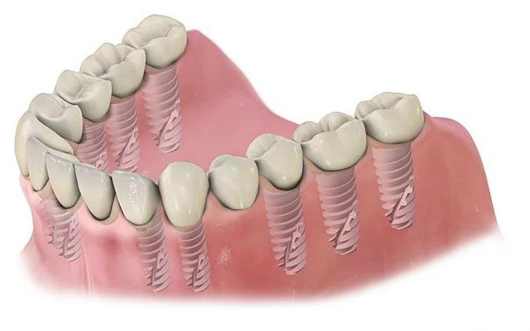 Milyen implantátumot használunk a fogbeültetés során?